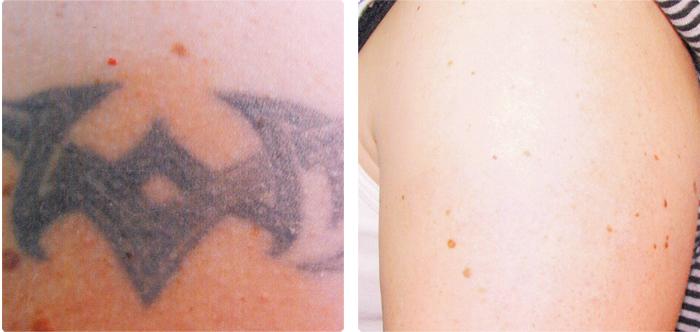 skin obsession tca peel instructions